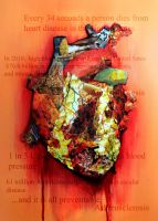Atherosclerosis Heart by Vii06