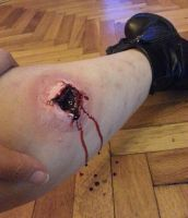 Gun shot with a latex prosthetic by BerryBrn