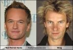NPH totally looks like Sting. by eclips3000