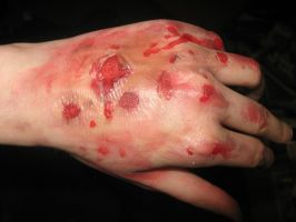 Scarring/burn hand latex by kathXD123
