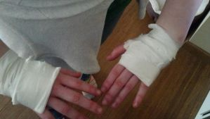 My Hands after the slap game.... by ShadowTiger10