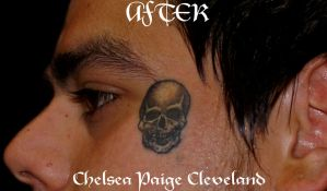 Skull covering dots healed - Tattoo by Chelsea C by SmilinPirateTattoo